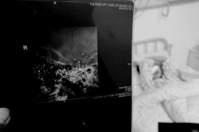谭青摄/X光片显示,小英的脑中还有大量金属异物。
