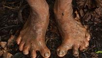亚马逊原始部落以猎猴为生多为6根脚趾扁平足(组图)